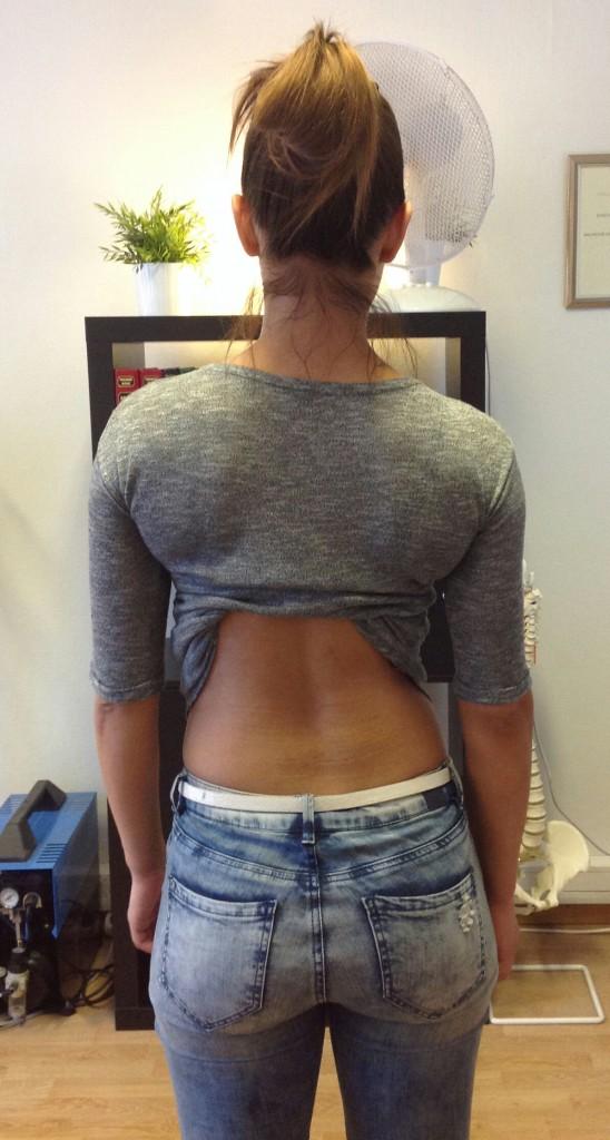 Ensimmäinen käynti kiropraktikolla -miten kävi?