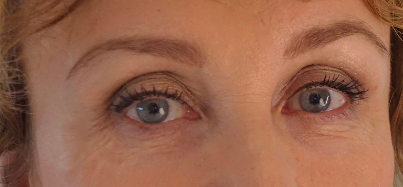 Silmäsairaudet ovat salakavalia