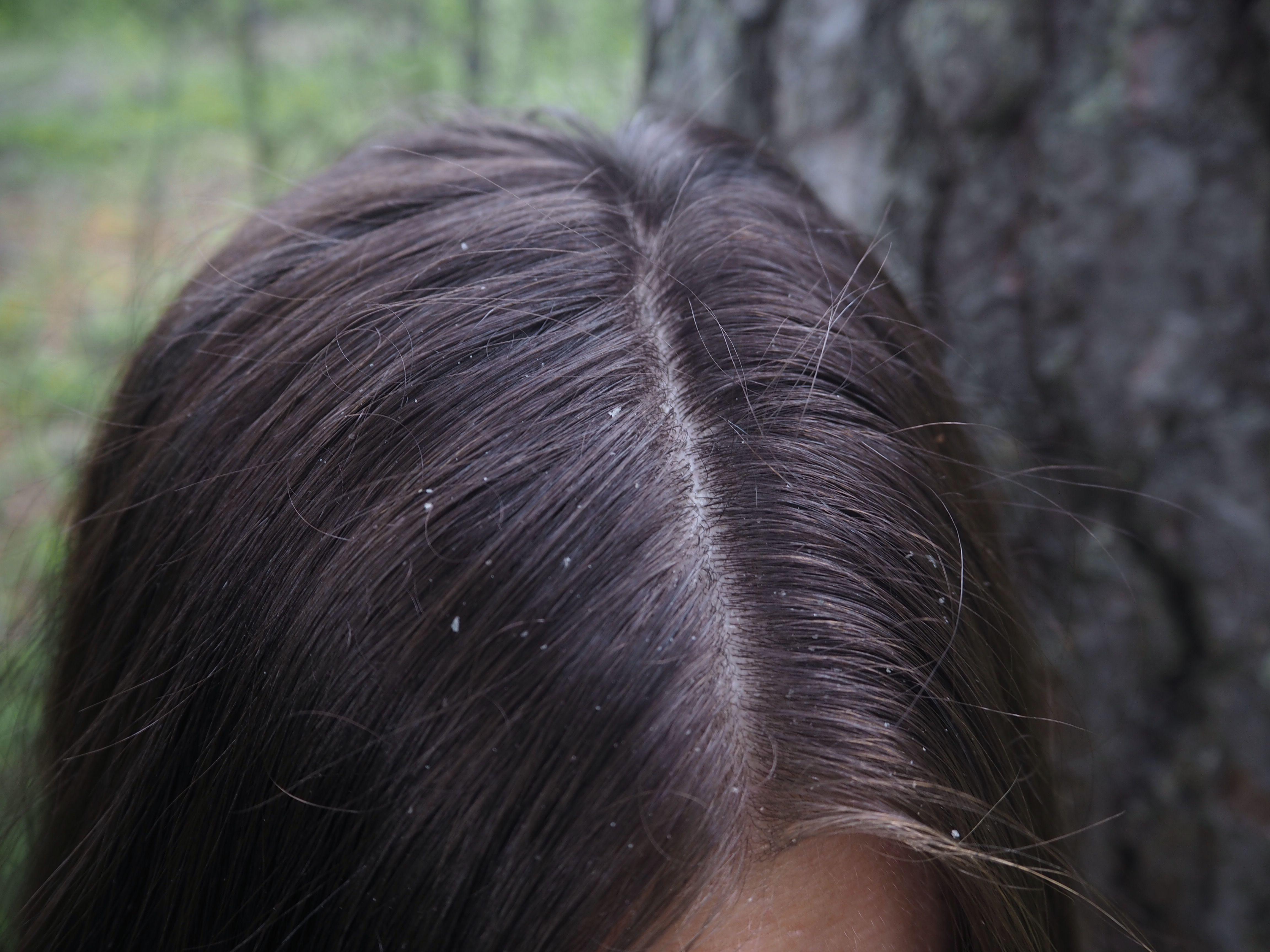 hilseilevä päänahka