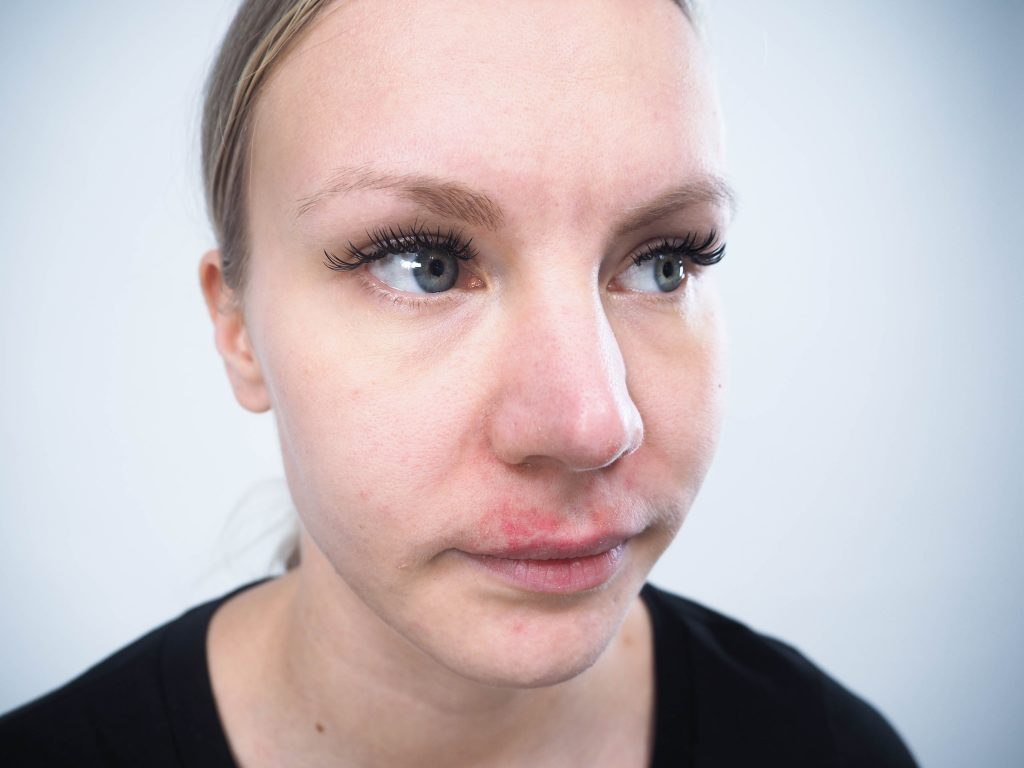 iho-ongelmat