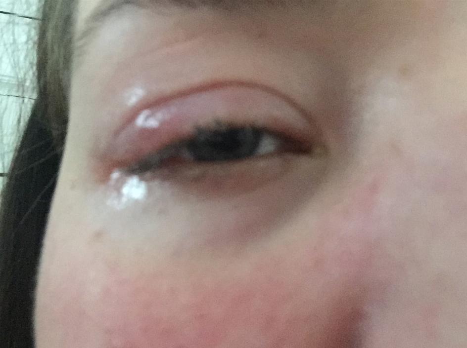 allerginen reaktio