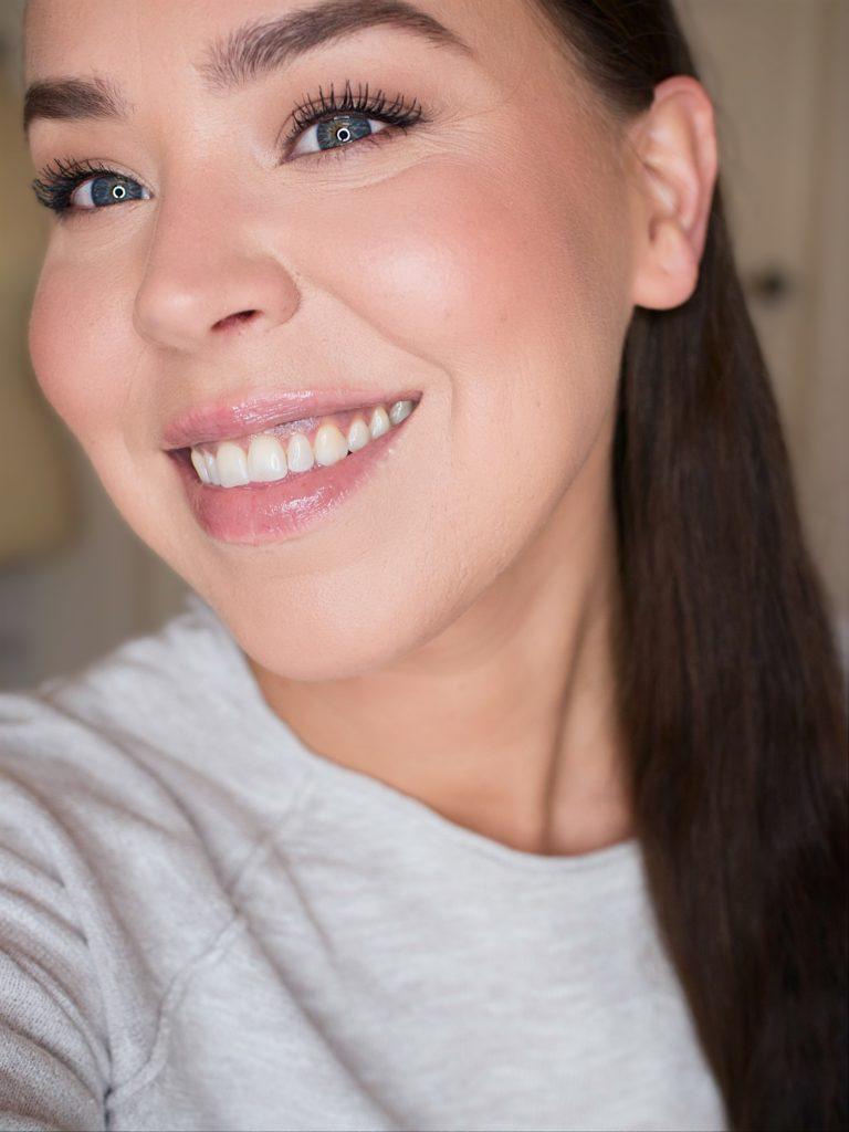 haaveena valkoiset hampaat