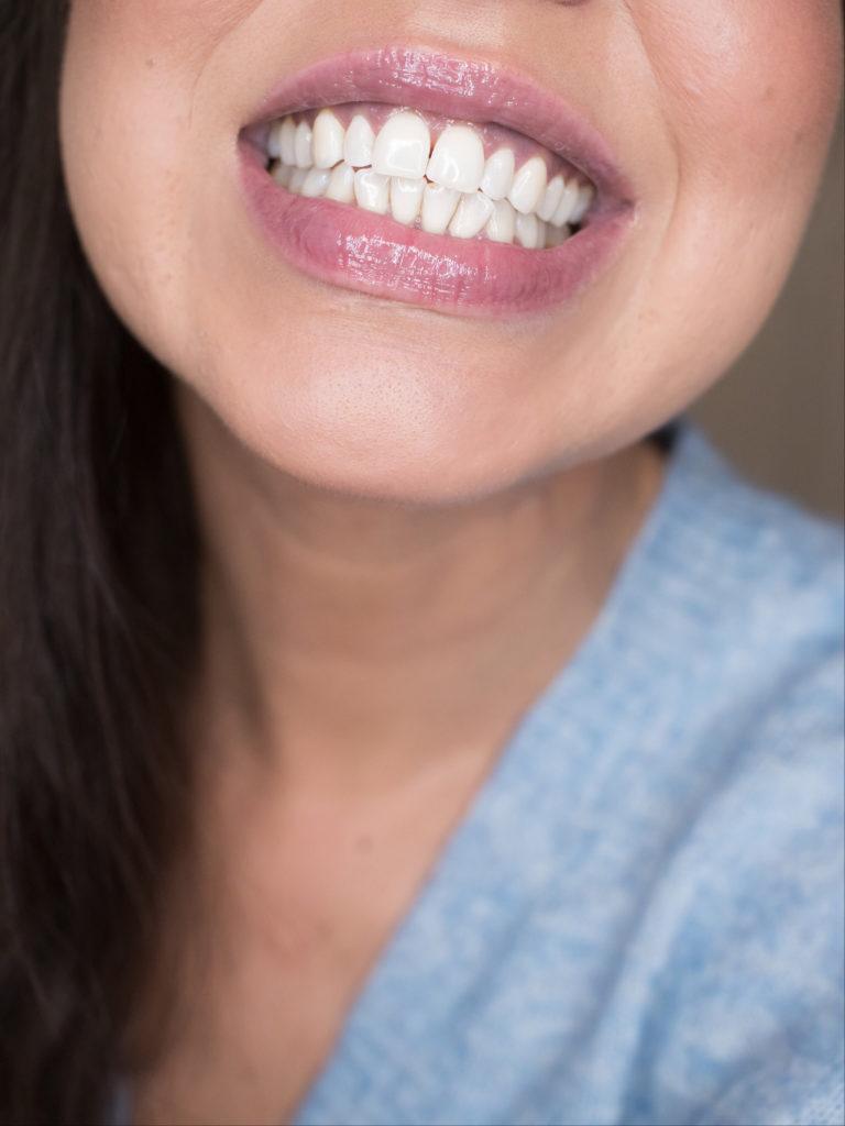 tehokas hampaiden valkaisu