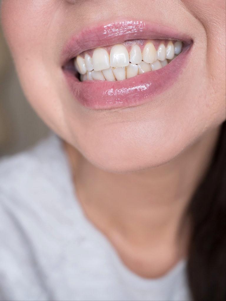 tummentuneet hampaat