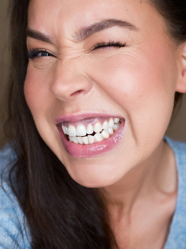 upeat hampaat
