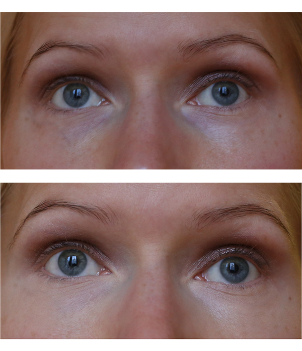 IdunConcealer_before_after