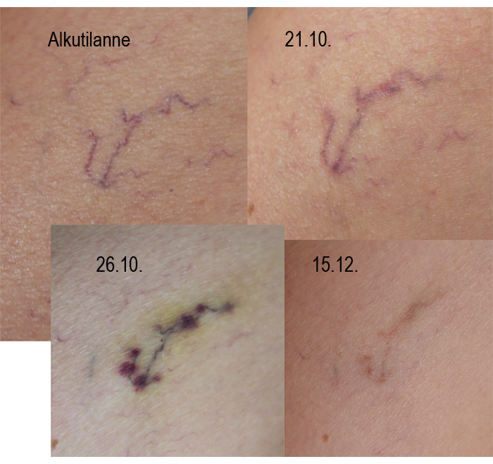Verisuonikäsittely: mitä iholle kuuluu nyt?
