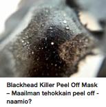 Paras mustapäänaamio Blackhead killer kokemuksia