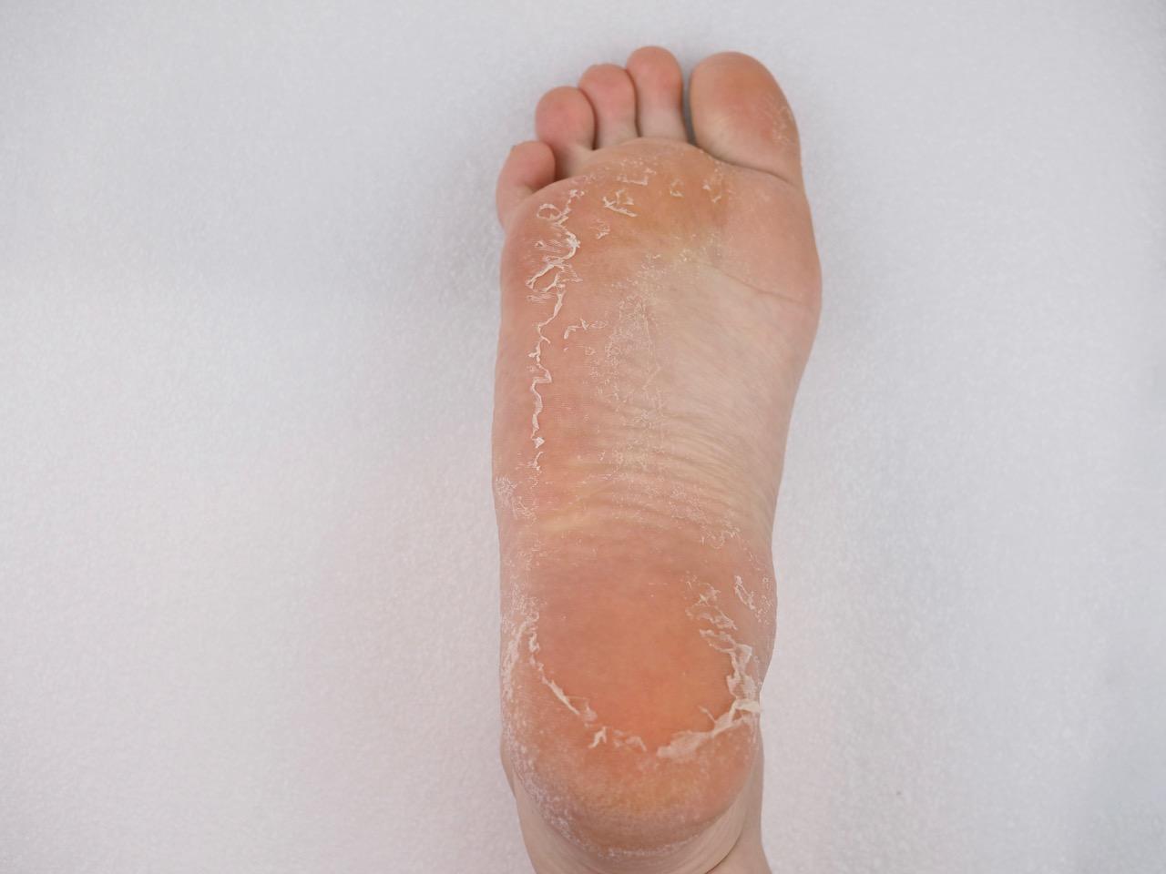 Holika Holika Baby Silky Foot One Shot Peeling kuorintasukat kokemuksia Ostolakossa Virve Vee