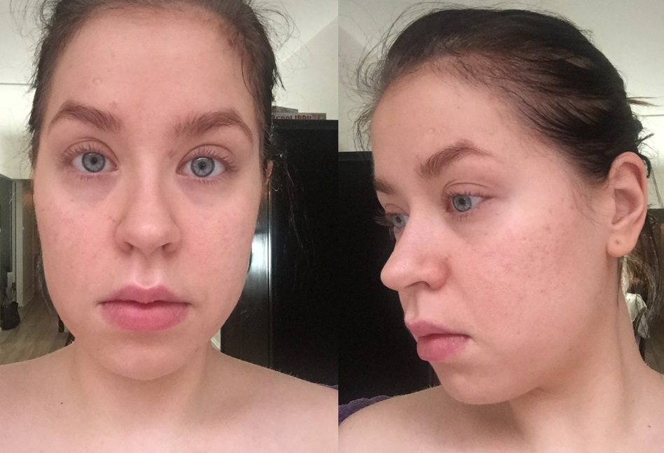 Tältä ihoni näytti viiden hoitokerran jälkeen. Arvet ovat tasoittuneet, epäpuhtauksia on vähemmän, iho on kirkkaampi eikä kiillä tai punoita.