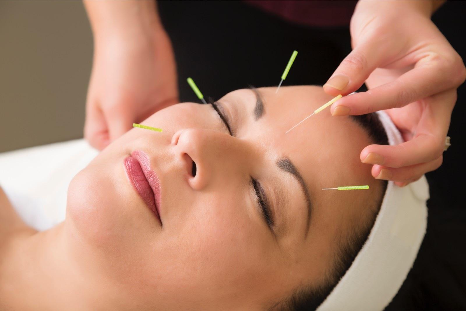 Akupunktio auttoi uneen, stressiin ja vatsavaivoihin
