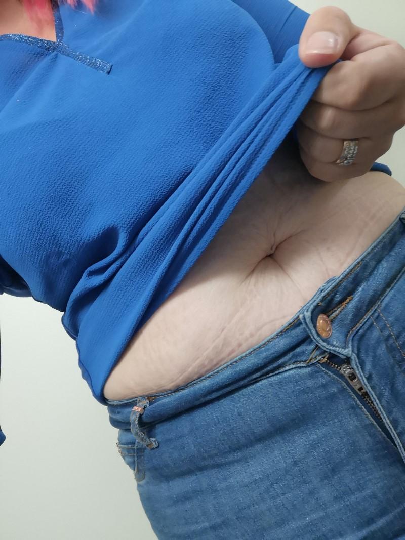 vatsa roikkuva iho raskausarvet